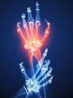 hand-joint-pain
