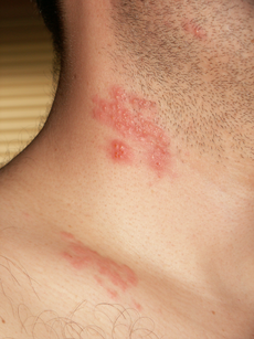230px-Herpes_zoster_neck